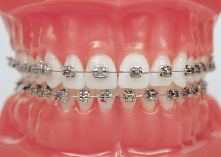 Ortodonti 1