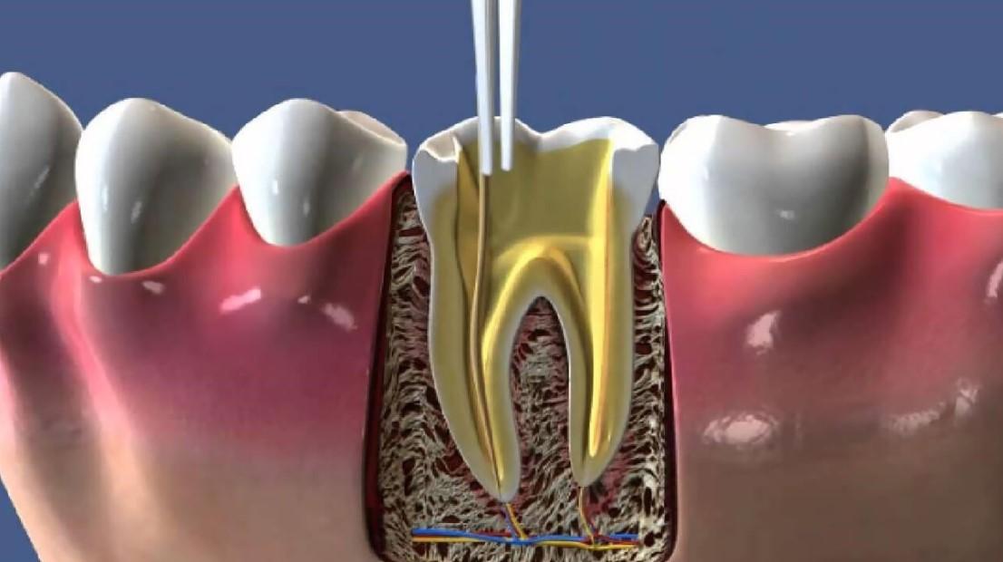 Endodonti 3