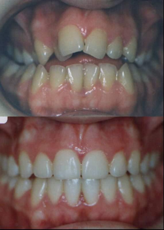 Ortodonti 2