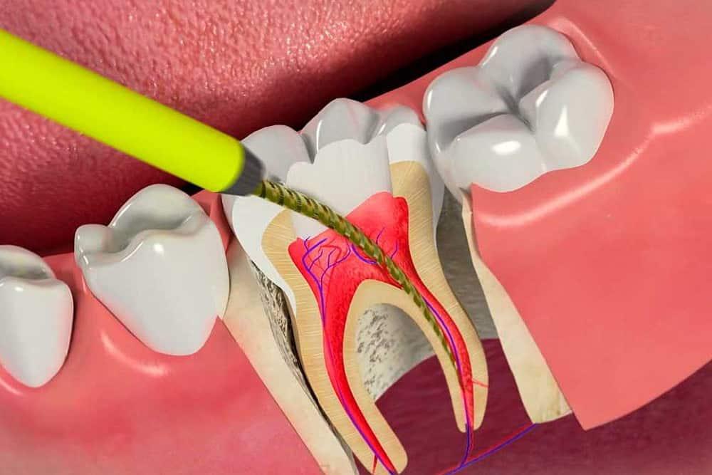 Endodonti 4