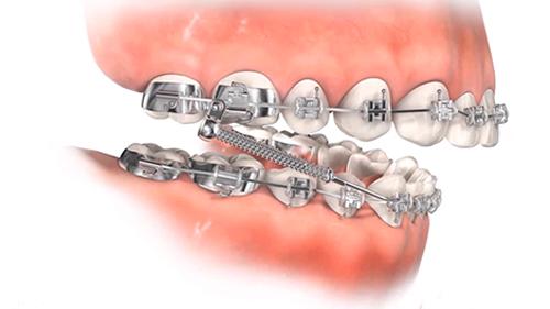 Ortodonti 4