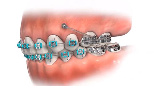 Ortodonti 5